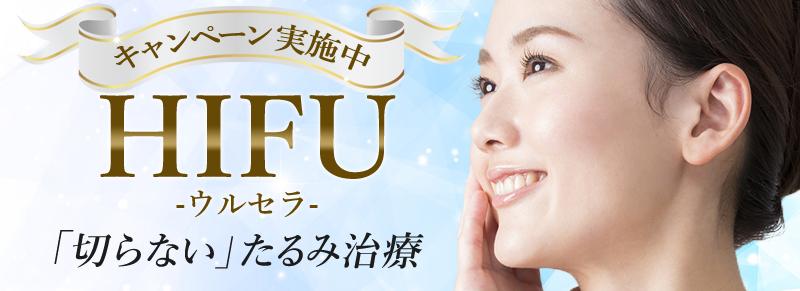 HIFU(ウルセラ)